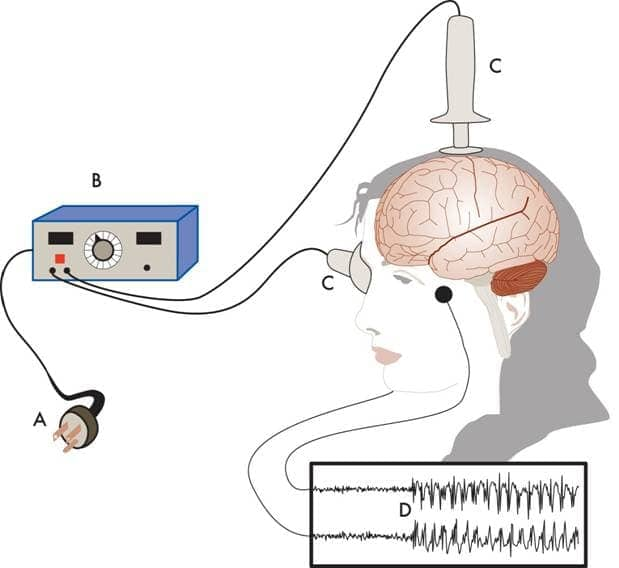 Image result for Electroconvulsive Therapy